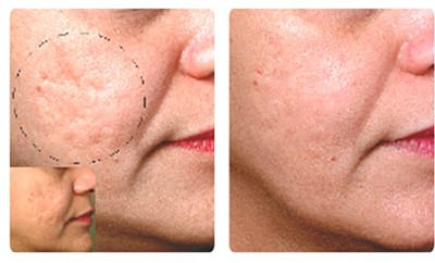 Profractional Laser San Diego