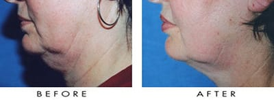 Titan Laser Treatment Before & After Photo