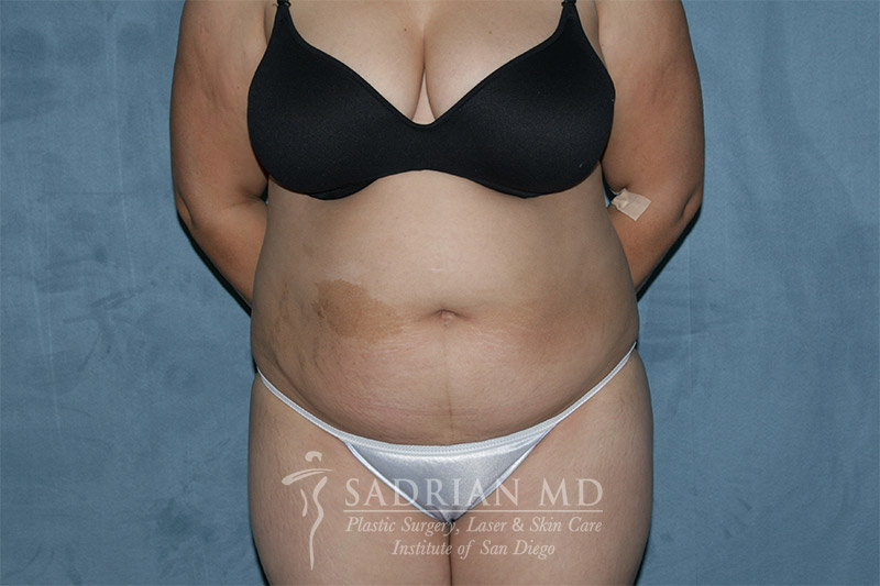 Dr. Sadrian's Tummy Tuck in La Jolla Before Photo