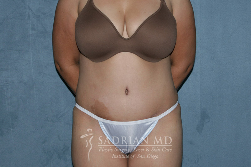 Dr. Sadrian's Tummy Tuck in La Jolla After Photo