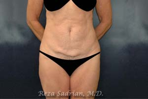 Before Tummy Tuck in La Jolla with Dr. Sadrian