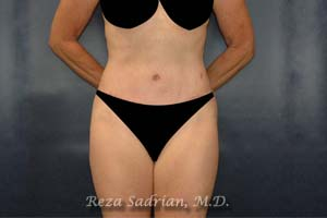 After Tummy Tuck in La Jolla with Dr. Sadrian