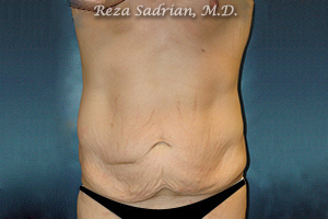 La Jolla Tummy Tuck Photo by Dr. Sadrian