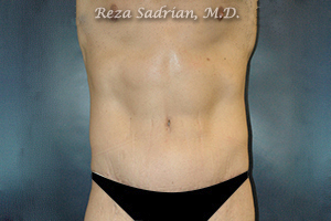 La Jolla Tummy Tuck Results by Dr. Sadrian