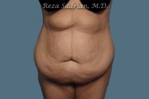Featured Tummy Tuck in La Jolla Photo
