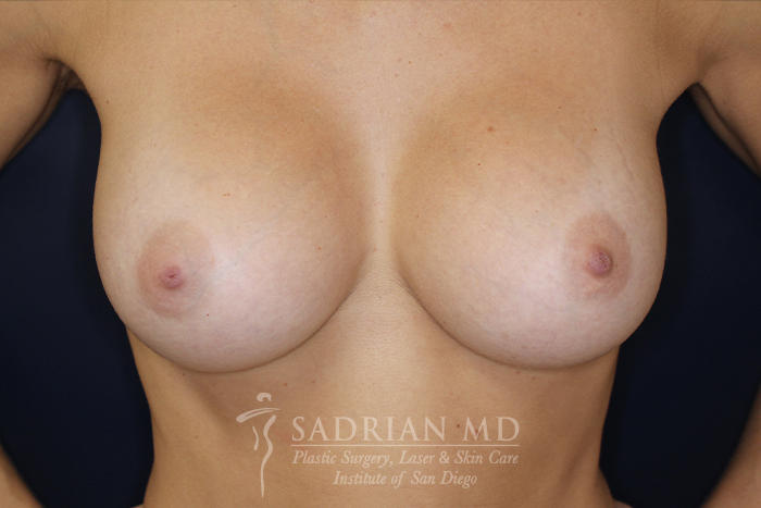Dr. Sadrian's Breast Augmentation in La Jolla After Photo