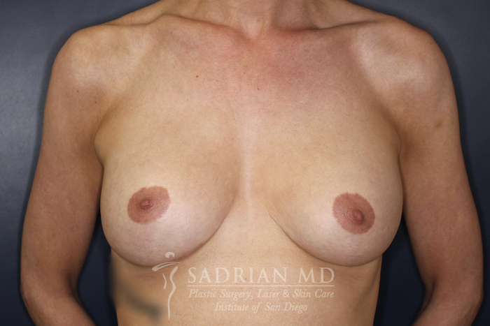 Breast Implants After Photos San Diego