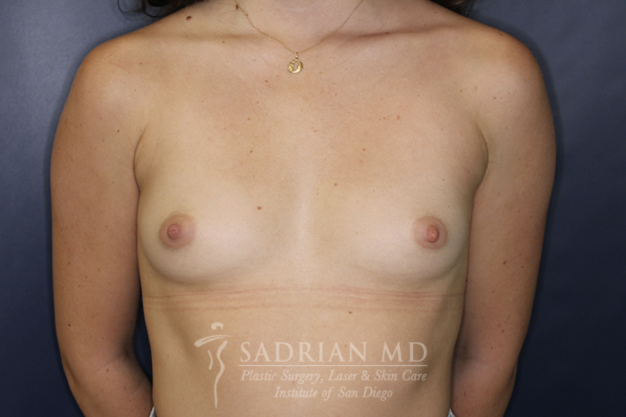 Breast Implant Picture: Before Implants