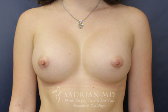 Breast Implant Picture: After Implants