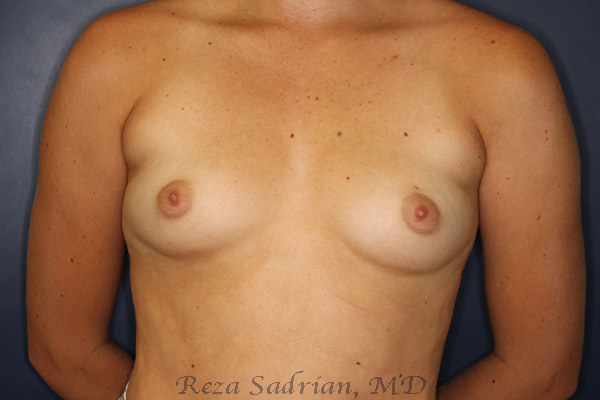 Before & After Breast Aug Photo