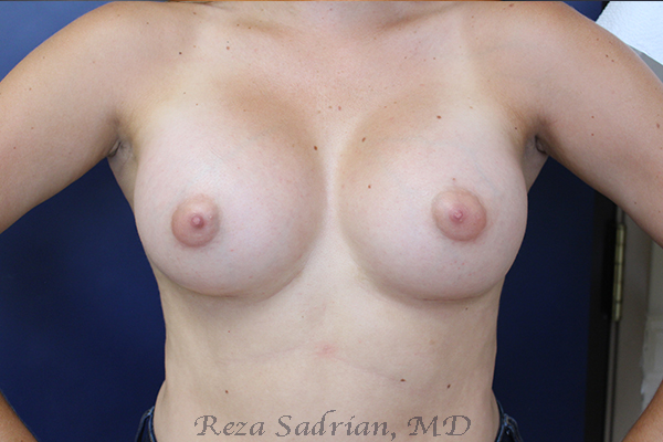 Before & After Breast Aug Photo: Results