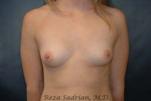 Before Breast Augmentation in La Jolla with Dr. Sadrian