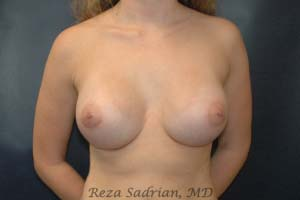 After Breast Augmentation in La Jolla with Dr. Sadrian