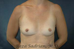 Dr. Sadrian's Before Breast Augmentation Photo