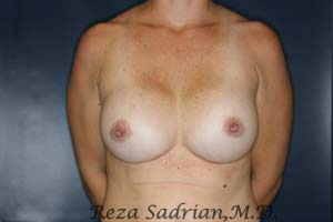Dr. Sadrian's After Breast Augmentation Photo