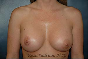 La Jolla Breast Augmentation Results by Dr. Sadrian