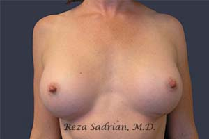 Featured Breast Augmentation San Diego Results Photo